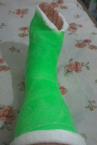 پای شکسته ی جیگر