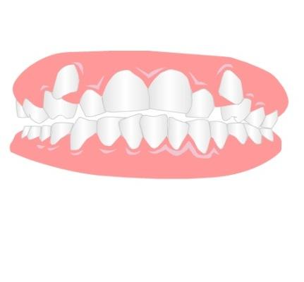 ناهنجاری های رایج در فک و دهان