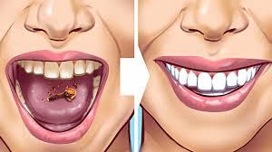 مجله سلامتی موزیک کافه راه و روش های معجزه اسای داشتن دندان تمییز