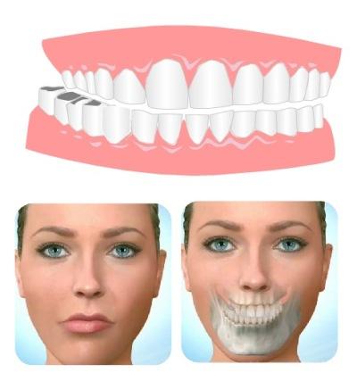 ناهنجاری های دندانی که نیاز به ارتودنسی دارد
